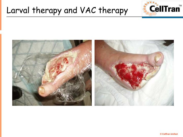 Larval therapy and VAC therapy