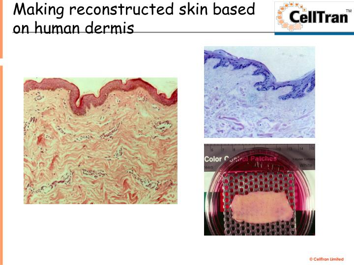 Making reconstructed skin based on human dermis