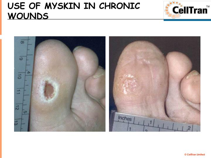 USE OF MYSKIN IN CHRONIC WOUNDS