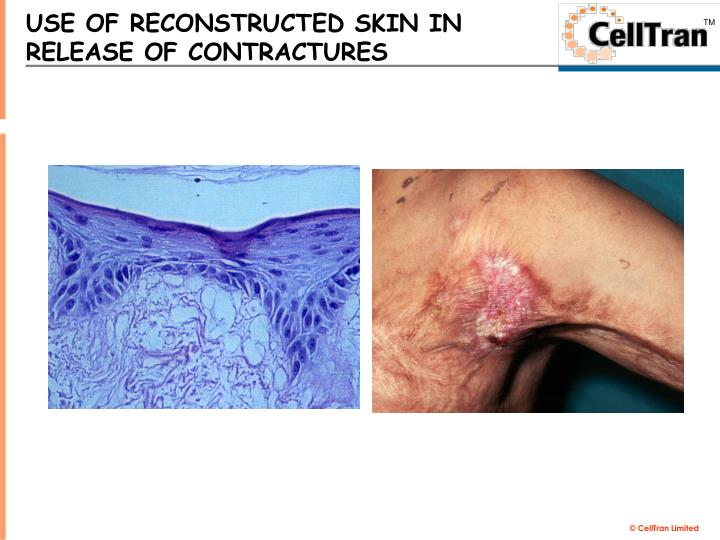 USE OF RECONSTRUCTED SKIN IN RELEASE OF CONTRACTURES