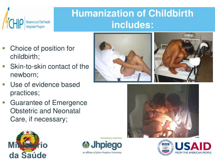 Humanization of Childbirth includes: