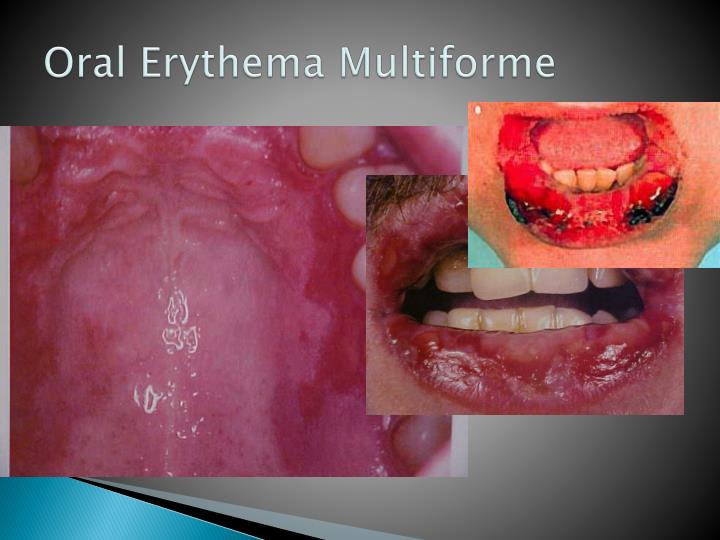Oral Erythema Multiforme