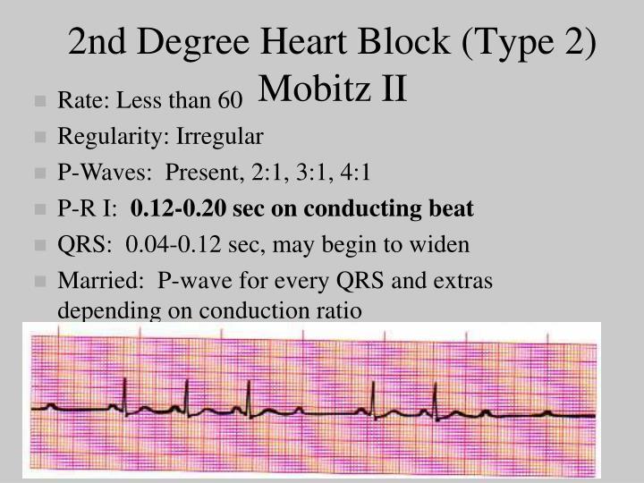 2nd Degree Heart Block (Type 2)