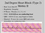 2nd degree heart block type 2 mobitz ii