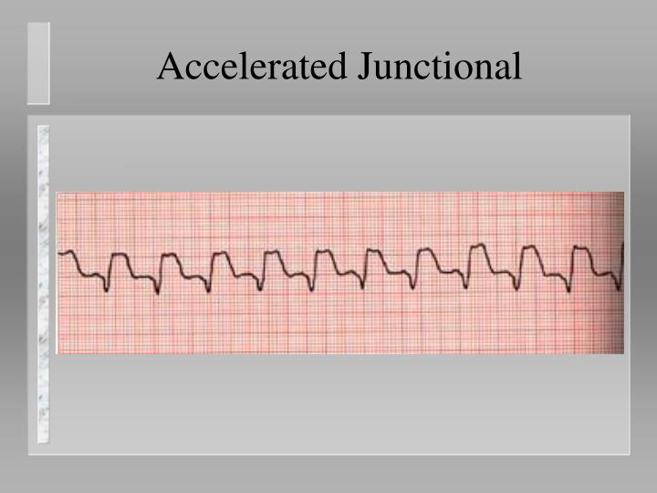 Accelerated Junctional