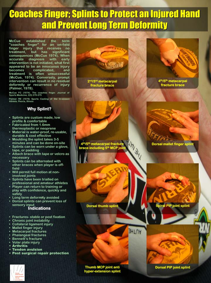 "McCue established the term ""coaches finger"" for an on-field finger injury that receives no treatment, but has significant consequences (McCue 1974). When accurate diagnosis with early intervention is not initiated, what first appeared to be an innocuous injury becomes complicated, and treatment is often unsuccessful (McCue, 1974). Conversely, prompt intervention can result in no residual deformity or recurrence of injury (Palmer, 1978)."