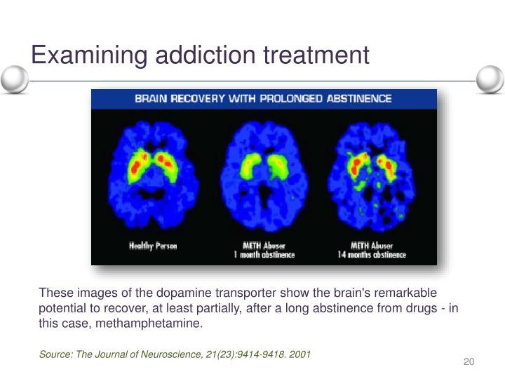Examining addiction treatment