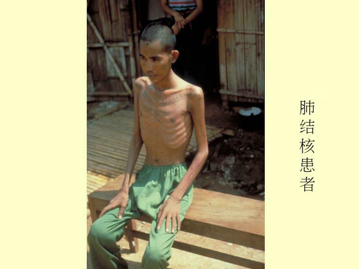 肺结核患者