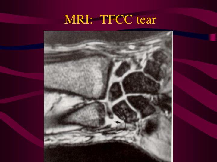 MRI:  TFCC tear