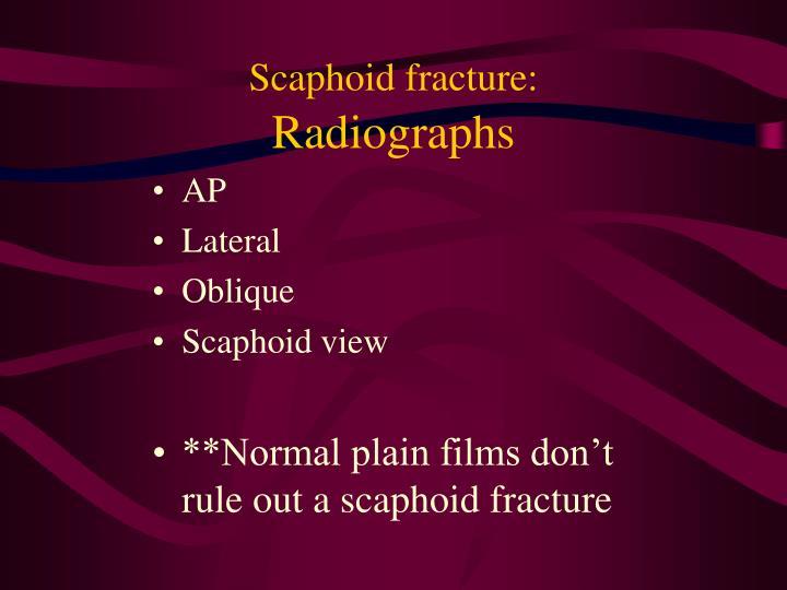 Scaphoid fracture: