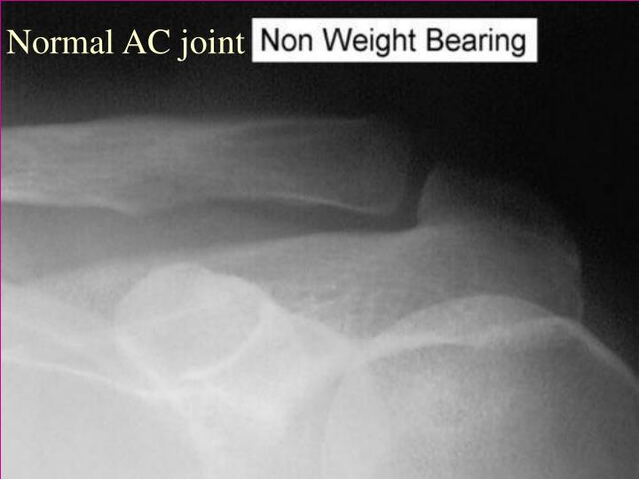 Normal AC joint