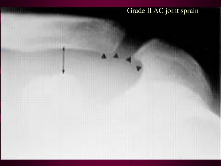 Grade II AC joint sprain