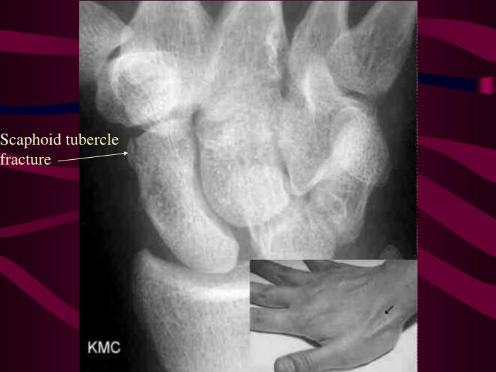Scaphoid tubercle