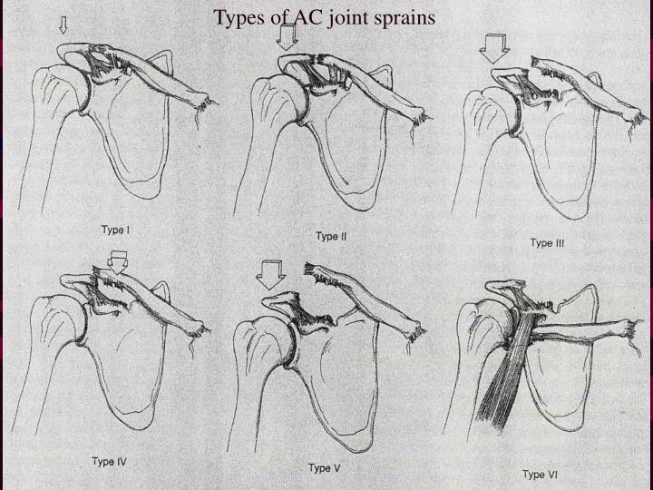 Types of AC joint sprains