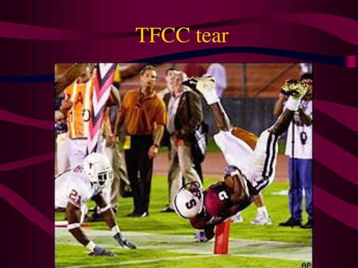 TFCC tear