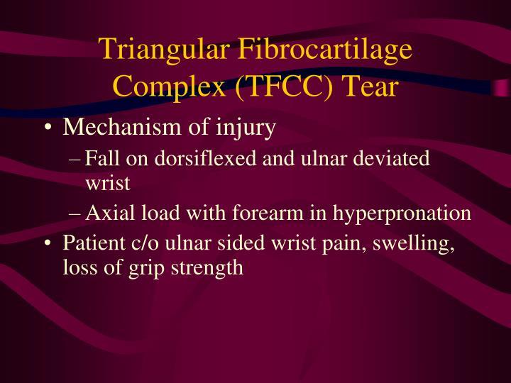 Triangular Fibrocartilage Complex (TFCC) Tear