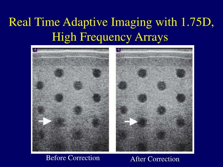 Real Time Adaptive Imaging with 1.75D, High Frequency Arrays