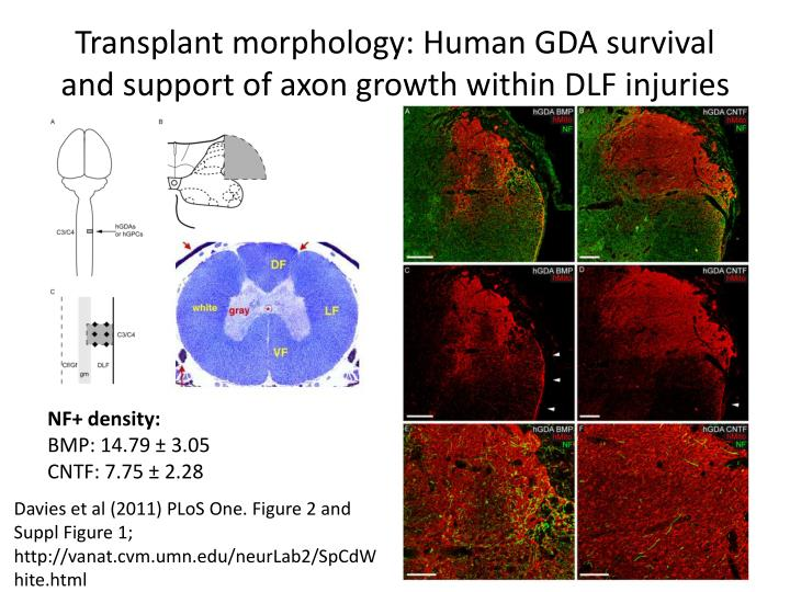Transplant morphology: Human GDA survival and support of axon growth within DLF injuries