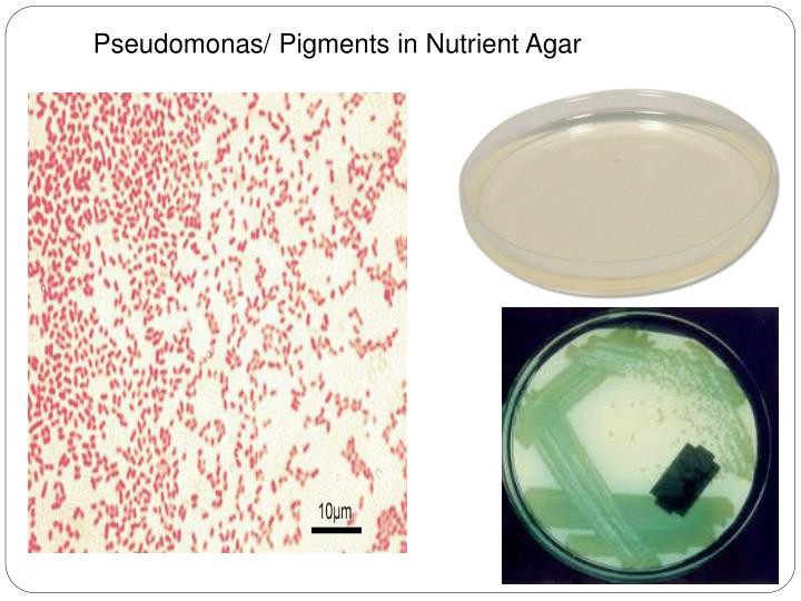 Pseudomonas/ Pigments in Nutrient Agar