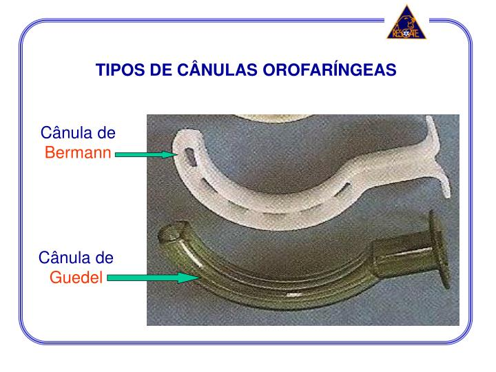 TIPOS DE CÂNULAS OROFARÍNGEAS