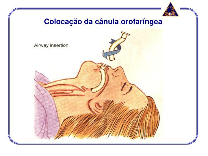 Colocação da cânula orofaríngea
