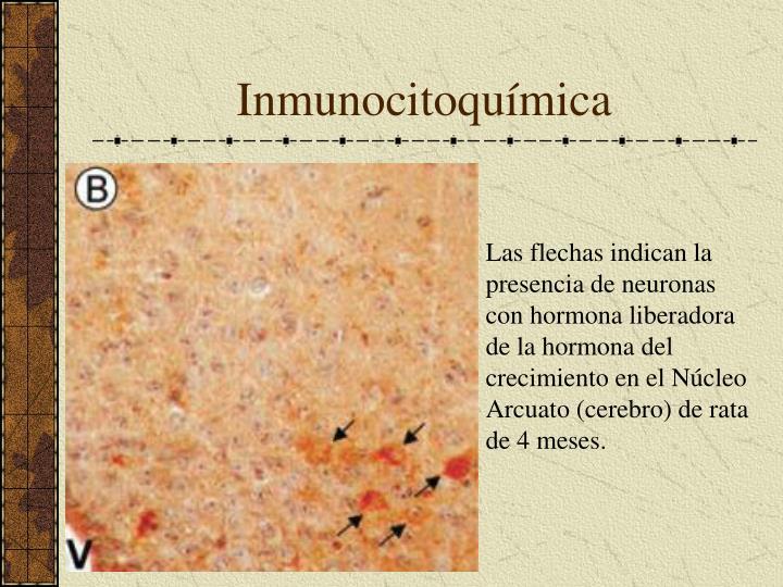 Inmunocitoquímica