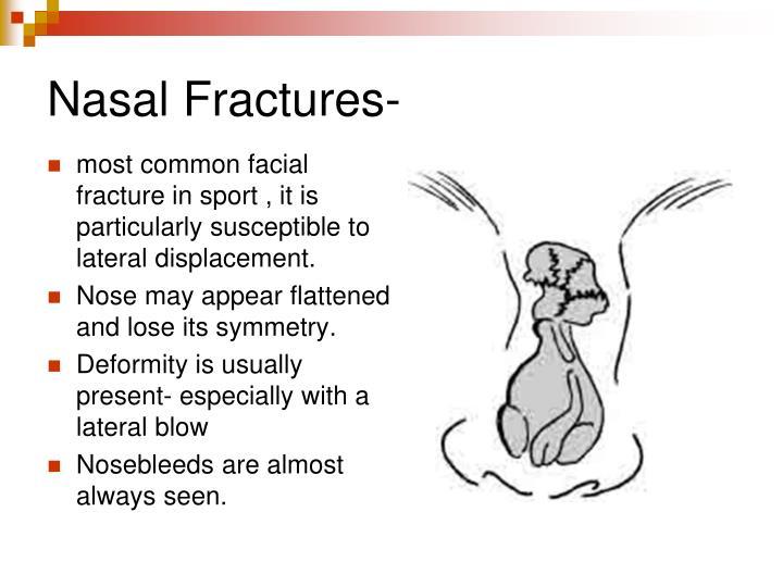 Nasal Fractures-