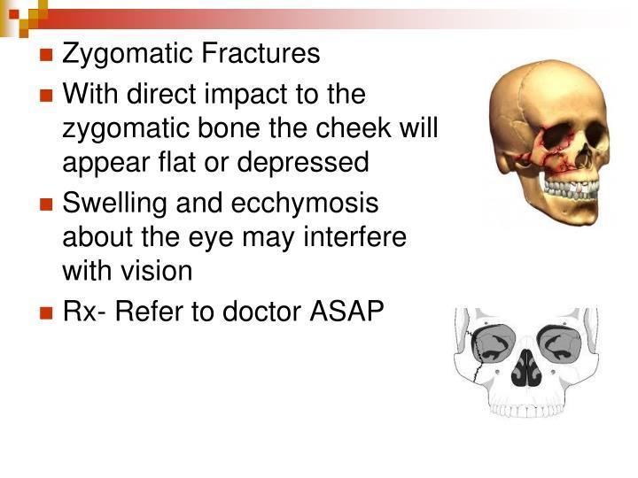 Zygomatic Fractures