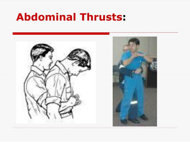 Abdominal Thrusts