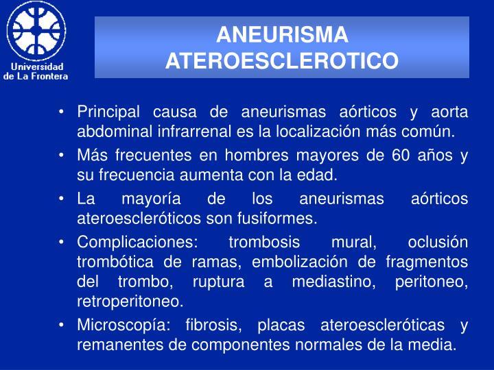 ANEURISMA ATEROESCLEROTICO