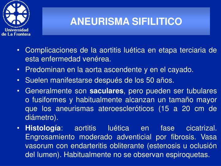 ANEURISMA SIFILITICO
