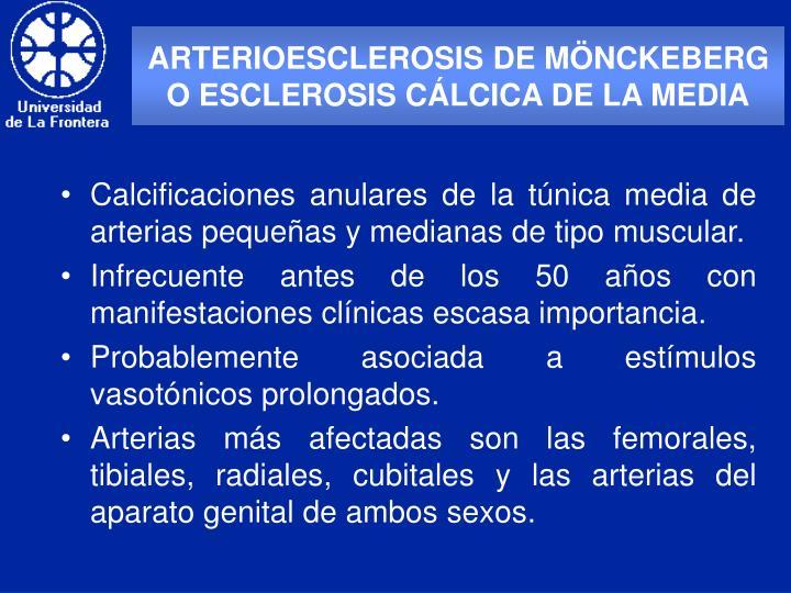 ARTERIOESCLEROSIS DE MÖNCKEBERG O ESCLEROSIS CÁLCICA DE LA MEDIA