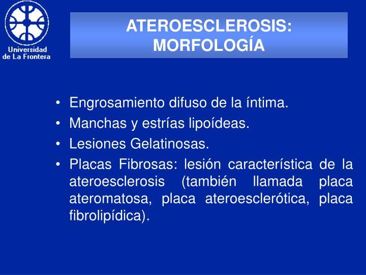 ATEROESCLEROSIS: MORFOLOGÍA