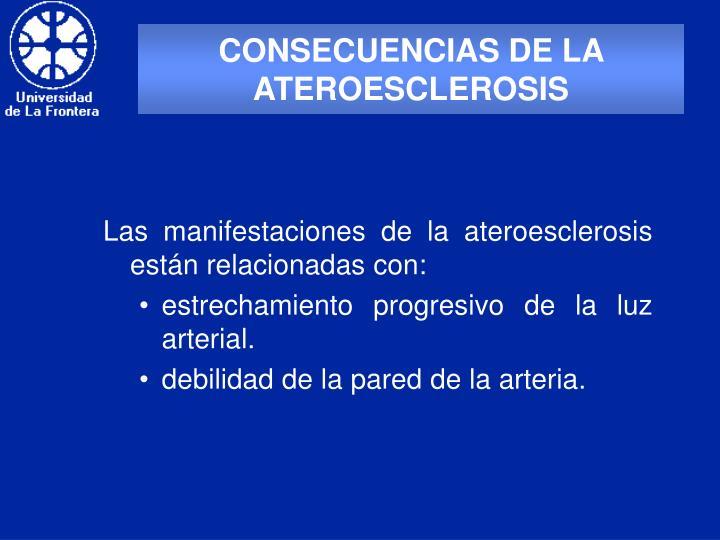 CONSECUENCIAS DE LA ATEROESCLEROSIS