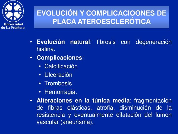 EVOLUCIÓN Y COMPLICACIOONES DE PLACA ATEROESCLERÓTICA