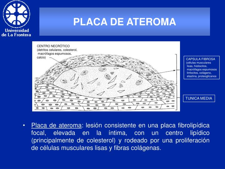 PLACA DE ATEROMA