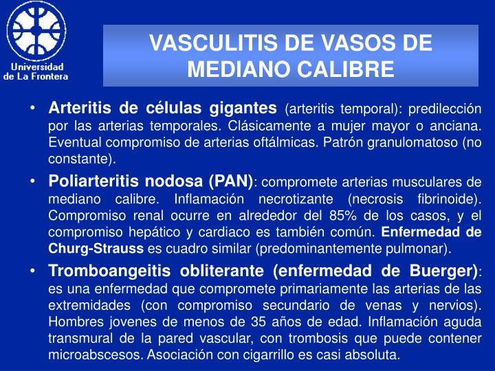 VASCULITIS DE VASOS DE MEDIANO CALIBRE