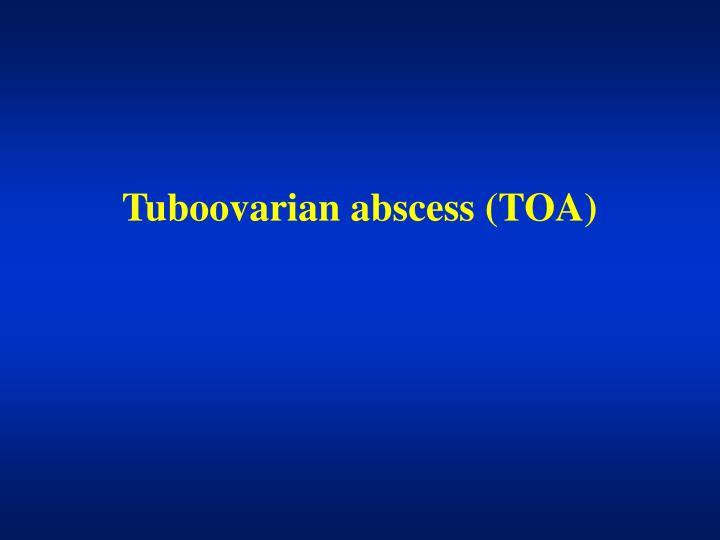 Tuboovarian abscess (TOA)