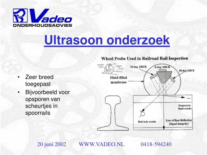 Ultrasoon onderzoek