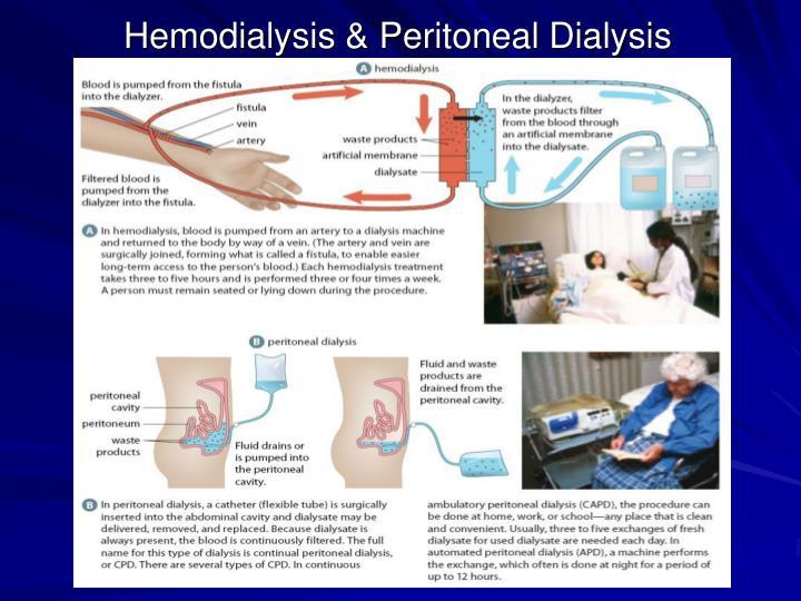 Hemodialysis & Peritoneal Dialysis