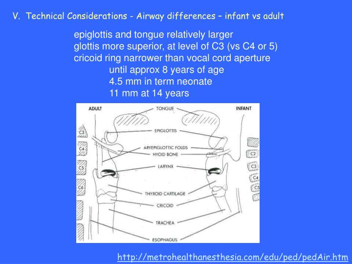V.  Technical Considerations - Airway differences – infant vs adult
