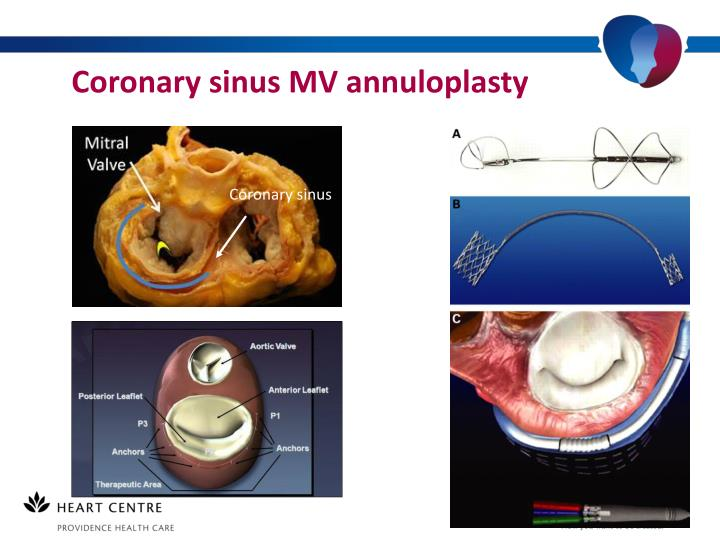 Coronary sinus MV annuloplasty