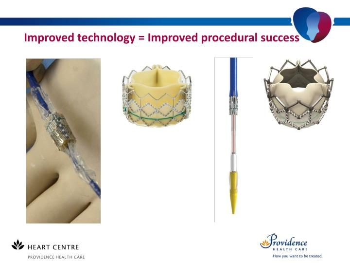 Improved technology = Improved procedural success