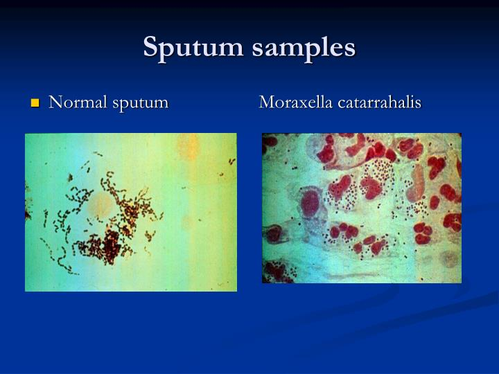Normal sputum