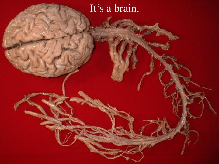 It's a brain.