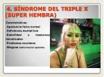 4 s ndrome del triple x super hembra