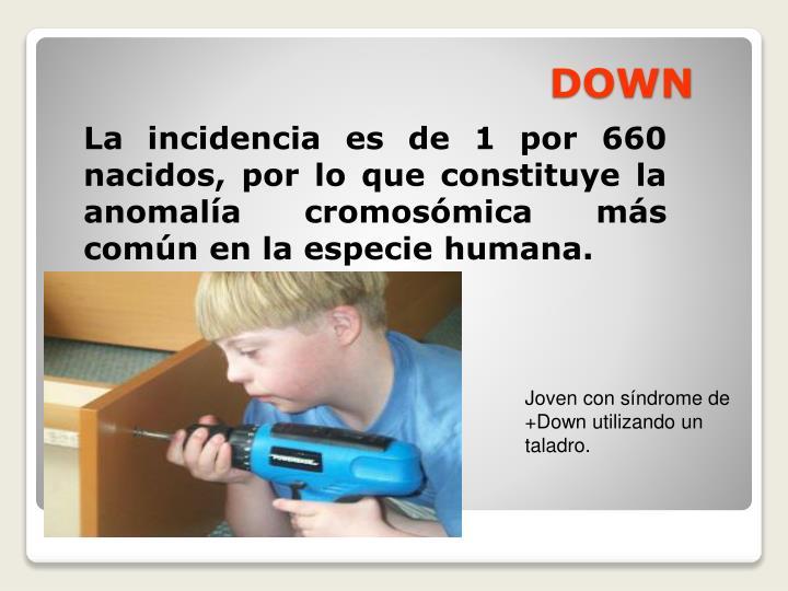 La incidencia es de 1 por 660 nacidos, por lo que constituye la anomalía cromosómica más común en la especie humana.