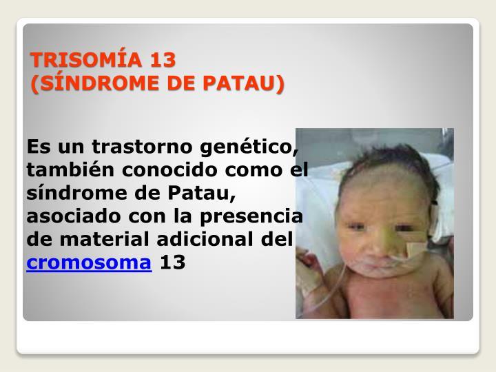 Es un trastorno genético, también conocido como el síndrome de Patau, asociado con la presencia de material adicional del