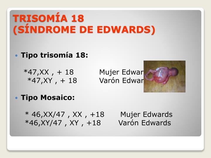 Tipo trisomía 18:
