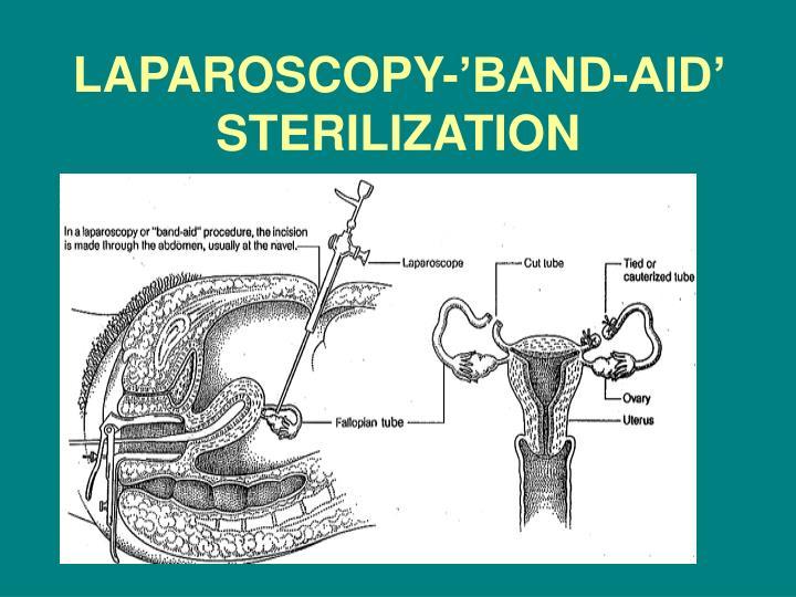 LAPAROSCOPY-'BAND-AID' STERILIZATION